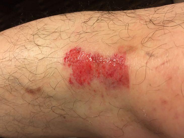 右膝擦過傷.jpg
